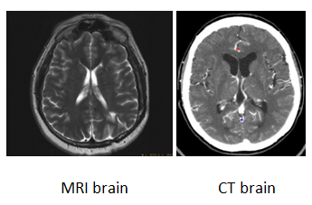 What S The Difference Between Ct Scan And Cat Scan