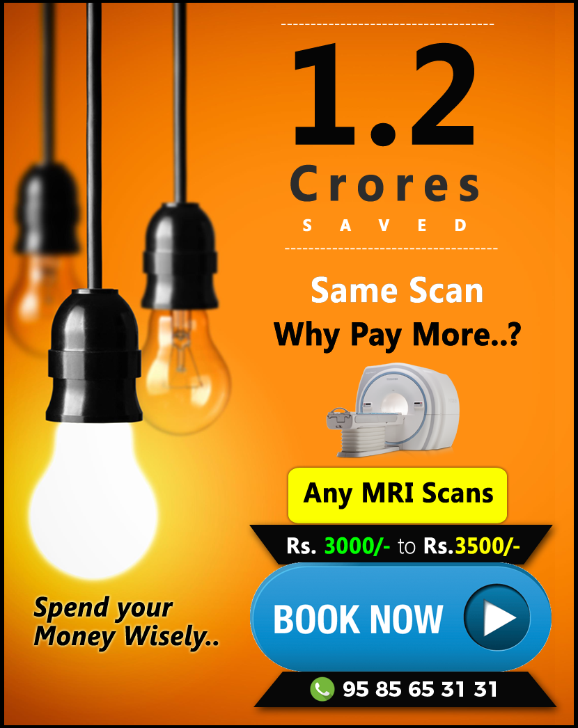 How much does an MRI Scan cost in Bangalore? Price list