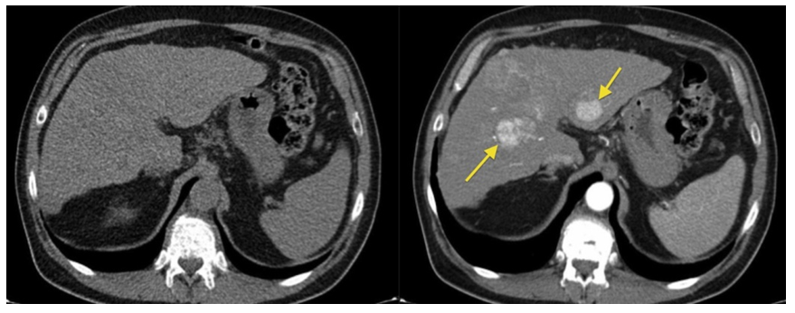 Abdominal Ct Scan Of An Adult With Autosomal Dominant Polycystic Kidney Disease Extensive Cyst Formation