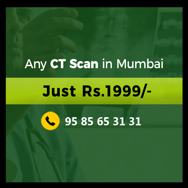50% Discount for CT scan in Mumbai - Save your Money!