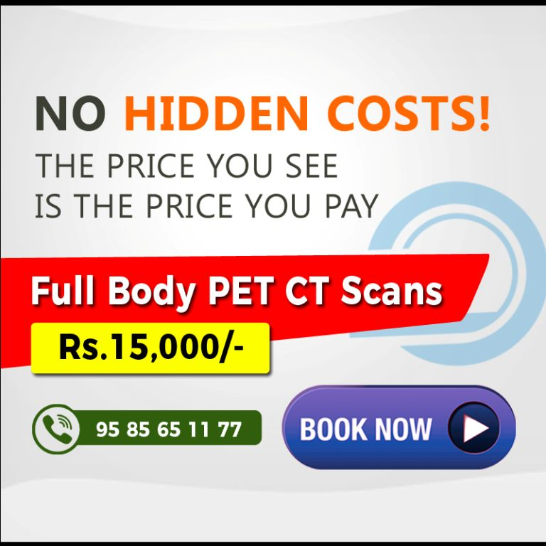 pet-ct-scan-bangalore