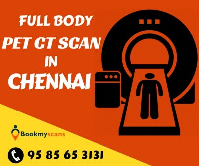 Full body PET CT Scan cost in Chennai