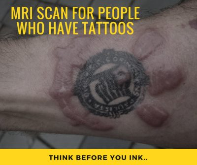 MRI Scans for People who have Tattoos