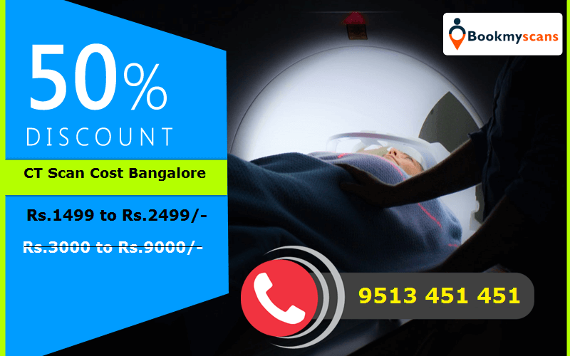 ct scan cost in bangalore