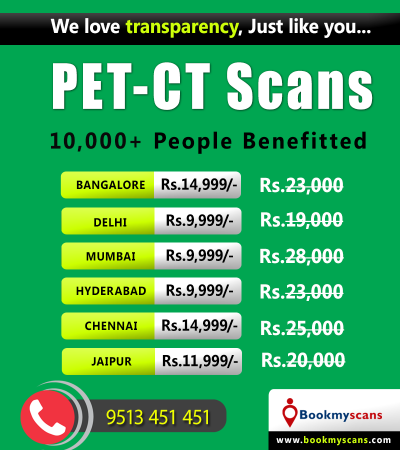 Full Body Pet-ct Scan in India