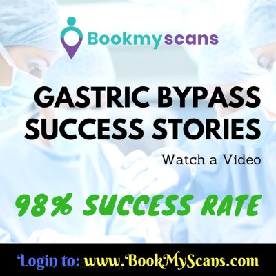 Gastric Bypass Success Stories with Success rate