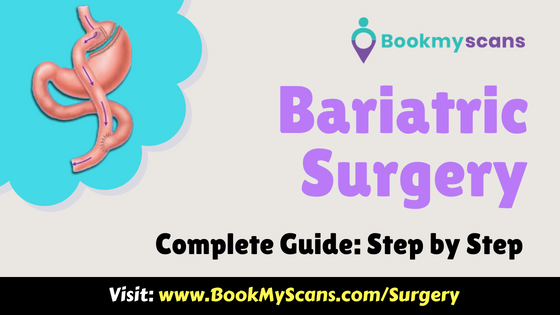 Gastric Bypass (Bariatric) Surgery