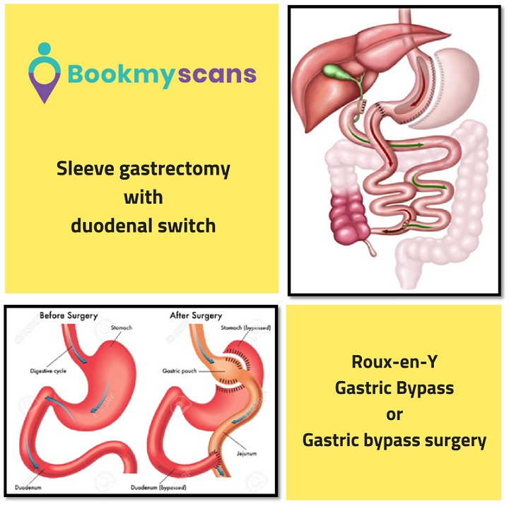 Mixed Procedure - Bariatric Surgery