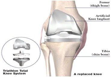 Preparing for Knee Arthroscopic Surgery
