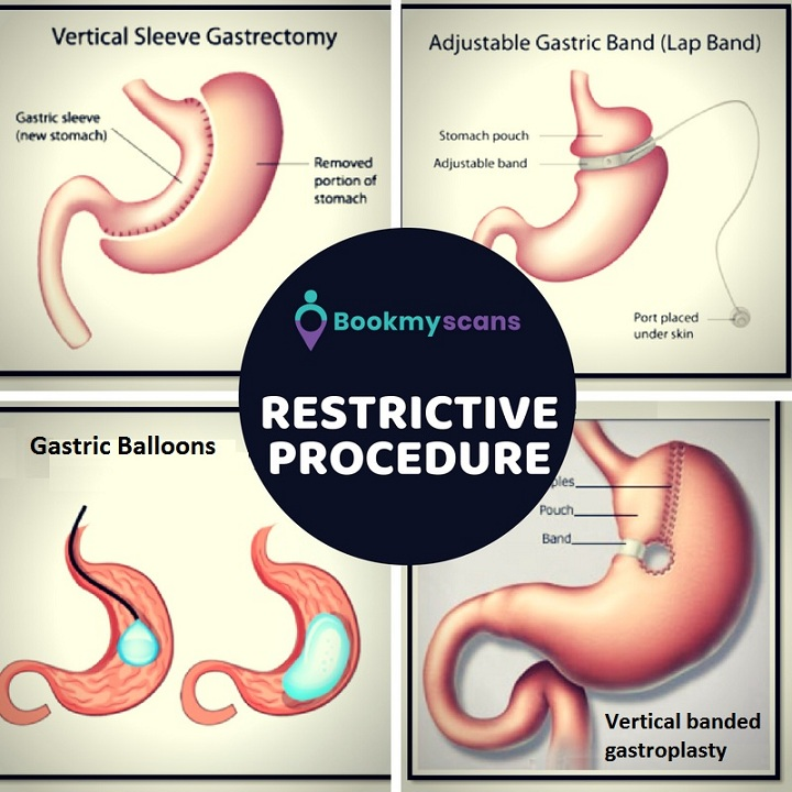 Restrictive Procedure - Bariatric Surgery