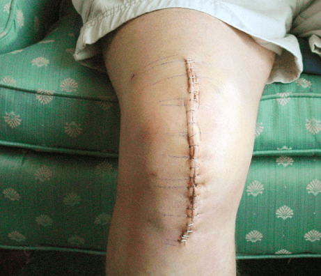 after the knee surgery