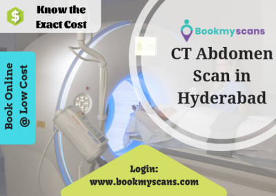 Know the Exact CT Abdomen scan Cost in Hyderabad
