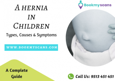 Hernia in Children - types, causes,symptoms