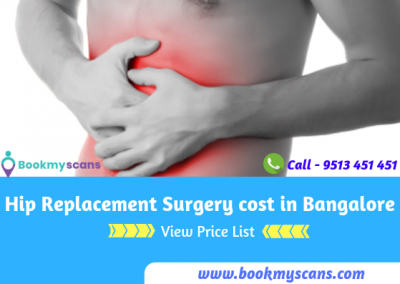 Hip Replacement surgery cost in Bangalore[view price list]