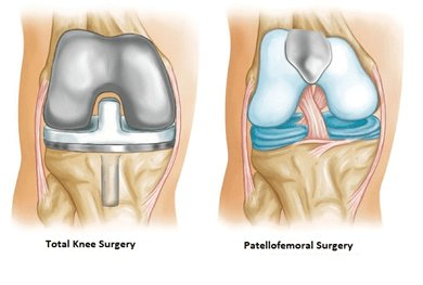 Kneecap Replacement