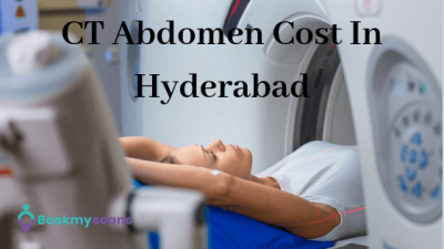 CT abdomen cost in Hyderabad