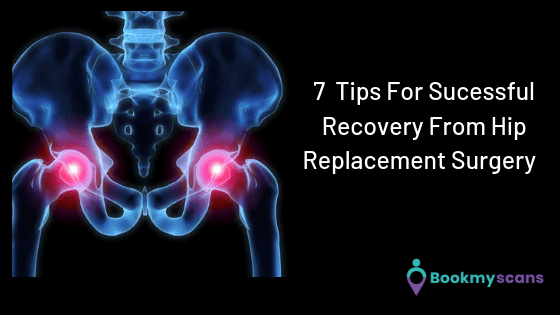 7 Tips for sucessul recovery from hip replacement surgery