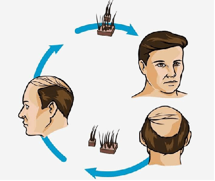 Hair Transplant: Procedure, Recovery & Complications