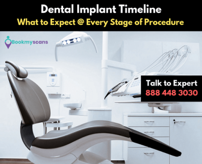 Dental-Implant-Timeline-What-To-Expect-At-Every-Stage-Of-Procedure