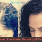 Hair transplant Procedure Recovery Complications