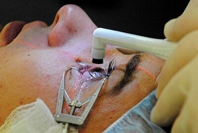 lasik surgery cost, lasik cost, eye operation, eye laser ,laser vision correction