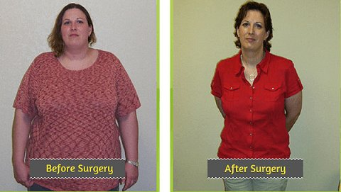 gastric bypass surgery price, gastric sleeve cost, how much does bariatric surgery cost ,weight loss surgery cost ,weight loss surgery in bangalore