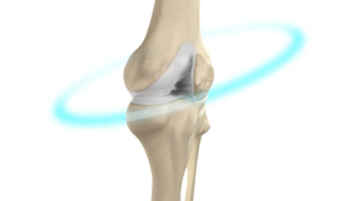 knee replacement surgery in bangalore, bone doctor near me, bone specialist near me