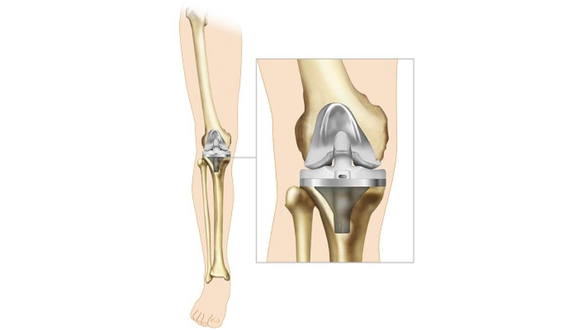 best doctor for knee replacement surgery in bangalore, knee replacement surgery in bangalore cost, knee replacement surgery