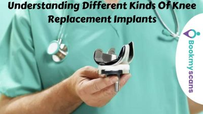 bone specialist near me, knee replacement surgery in bangalore, knee transplant