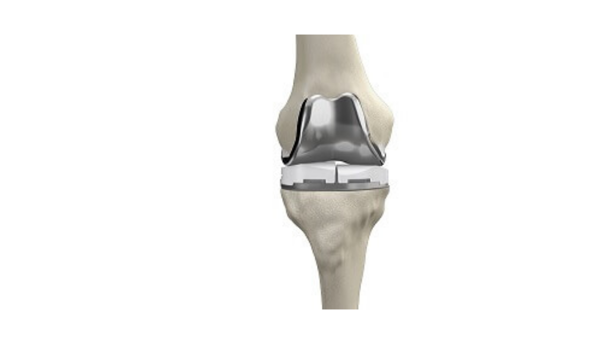 orthopedist,bone doctor near me,total knee replacement,acl reconstruction,knee replacement surgery,cost
