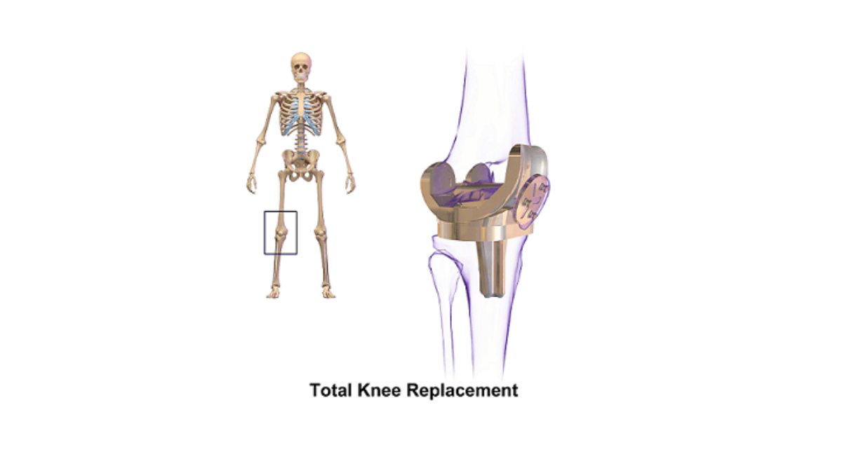tkr,ortho doctor, ortho doctor near me, acl surgery, orthopedic clinic near me, knee replacement surgery