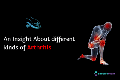 arthritis symptoms, systemic lupus erythematosus, psoriatic arthritis, ra factor, arthritis treatment, rheumatoid arthritis treatment, types of arthritis, rheumatoid factor, rheumatoid arthritis symptoms, gouty arthritis