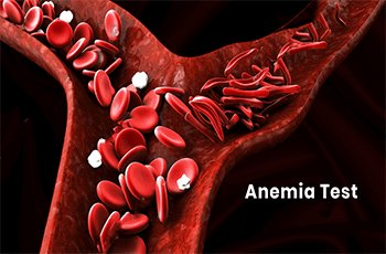 anemia-package
